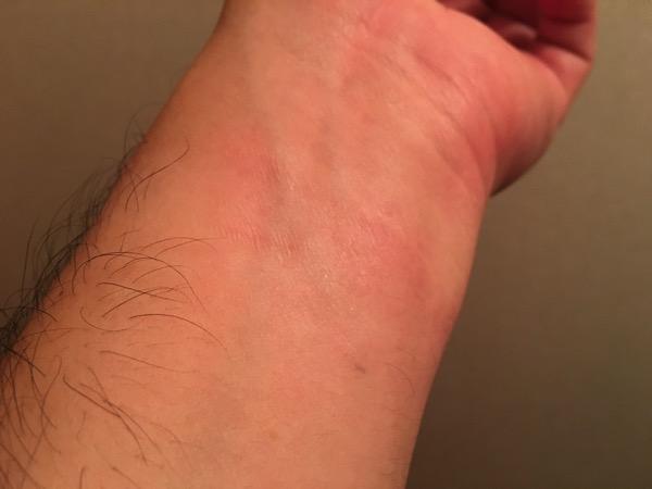 汗疹を治療中の腕の画像